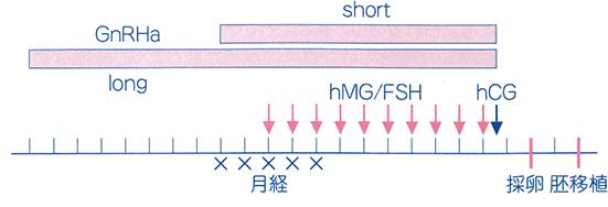 GnRha(スプレーキュア)+hMG/FSH法解説図