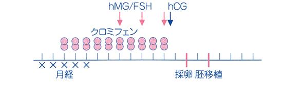 クロミフェン(クロミッド)+hMG/FSH併用法解説図
