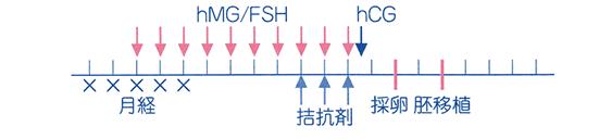 hMG/FSH+ GnRH拮抗剤法解説図